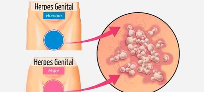 Herpes i skeden symptomer